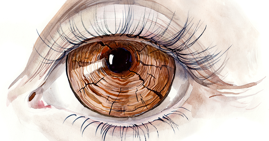 A painting of a dry eye